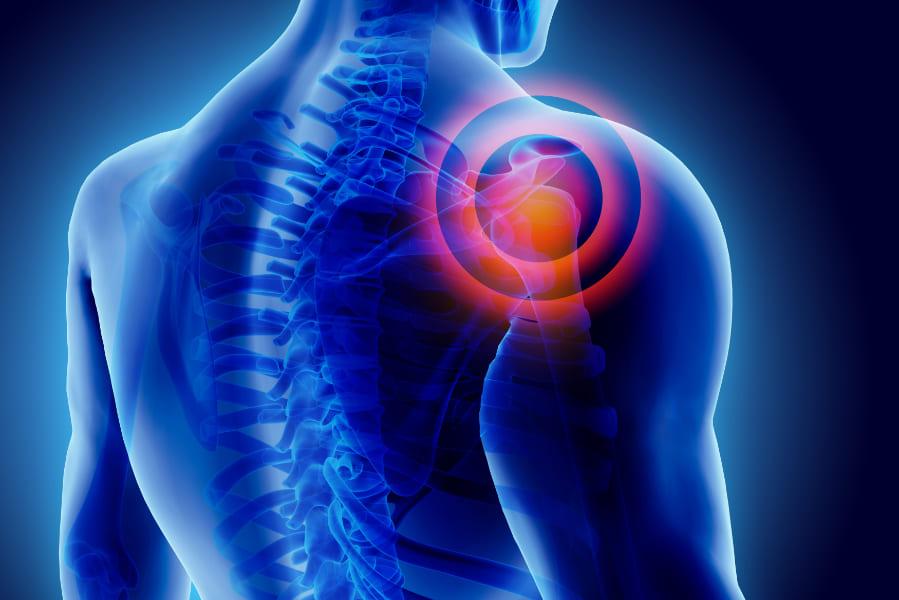 Übungen Gegen Schulterschmerzen – Teil 2